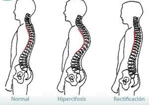 Aplicaciones para mantener una buena postura, columna y zona lumbar. Apps