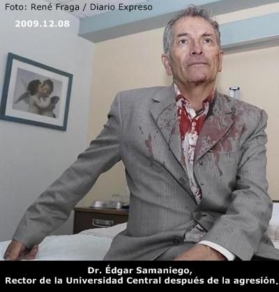 DOCTOR ÉDGAR SAMANIEGO LUEGO DE LA AGRESIÓN